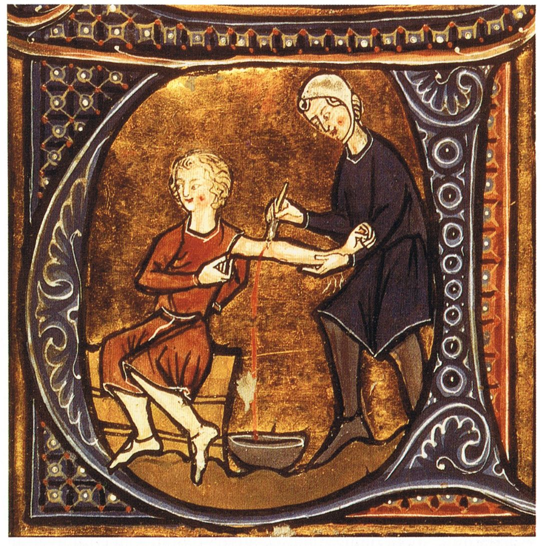 Blood letting painting from the 13th century